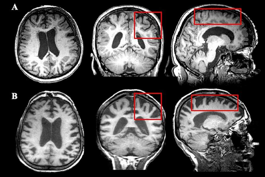 People with MS are living longer. How does neurodegeneration in these patients change as they age? Image