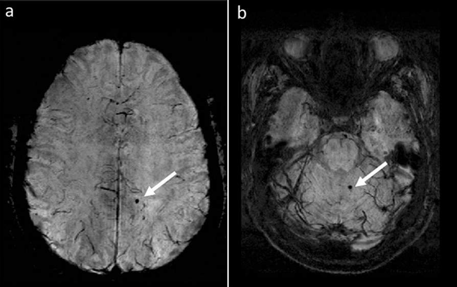 Study: Cerebral microbleeds in MS patients are associated with Increased Risk for Physical and Cognitive disabilities. Image