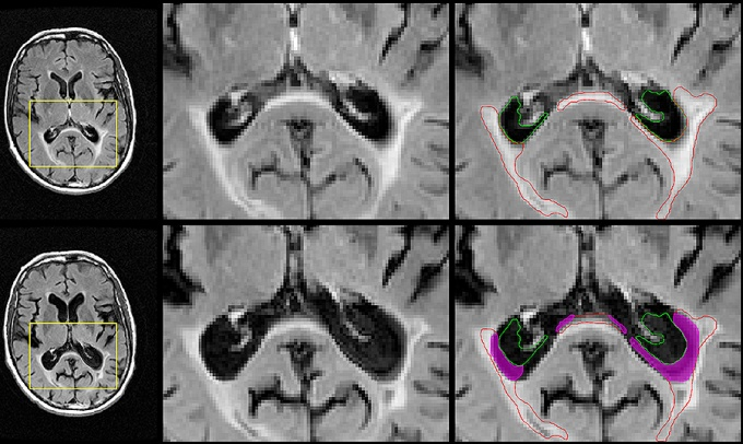 A better MRI marker for disability progression in MS Image