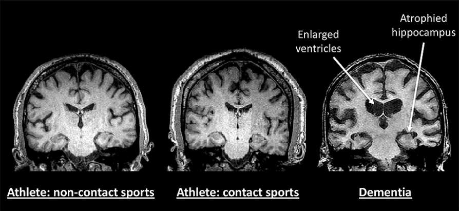 Comprehensive study of 21 retired NFL and NHL players doesn't find evidence of early onset dementia Image